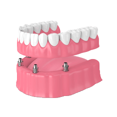 illustration of All-On-X Implant-Supported Dentures