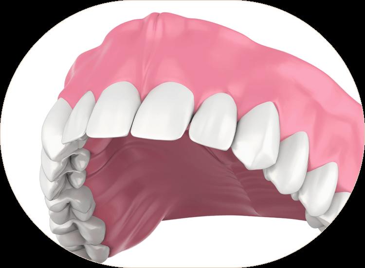 illustration of full dentures